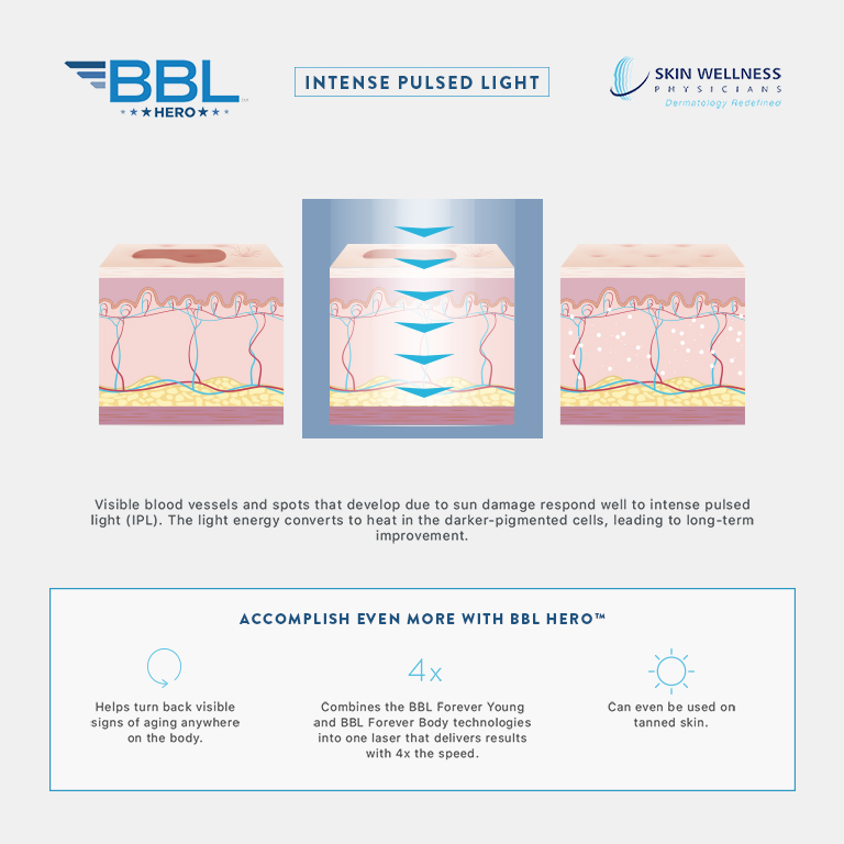 Discover how IPL with BBL Hero works to treat visible vessels and sun-damage spots in the skin at Skin Wellness Physicians.